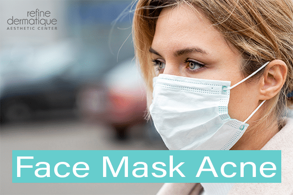 Face Masks and Acne Breakouts